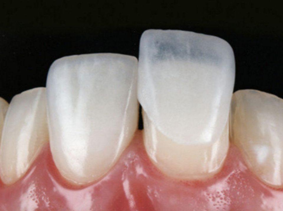 Dente com lente de contato